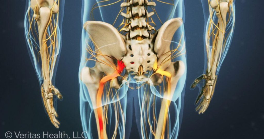 Benefits of Chiropractic Care for Sciatica