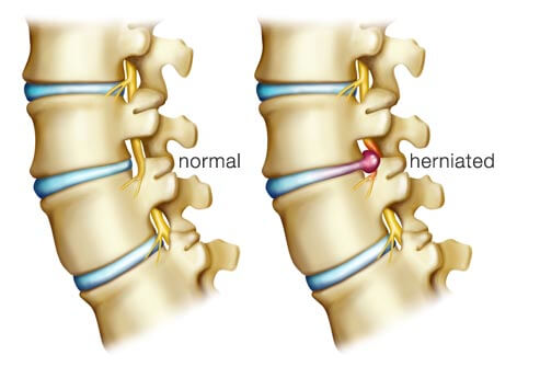 Disc Herniation and Chiropractic Care