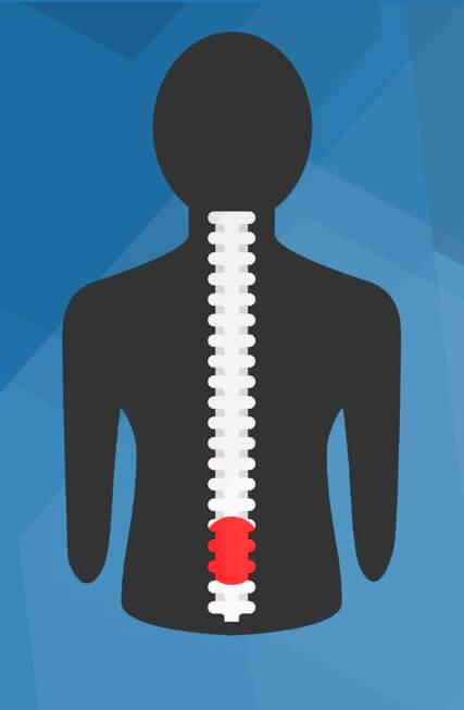 back pain x-ray